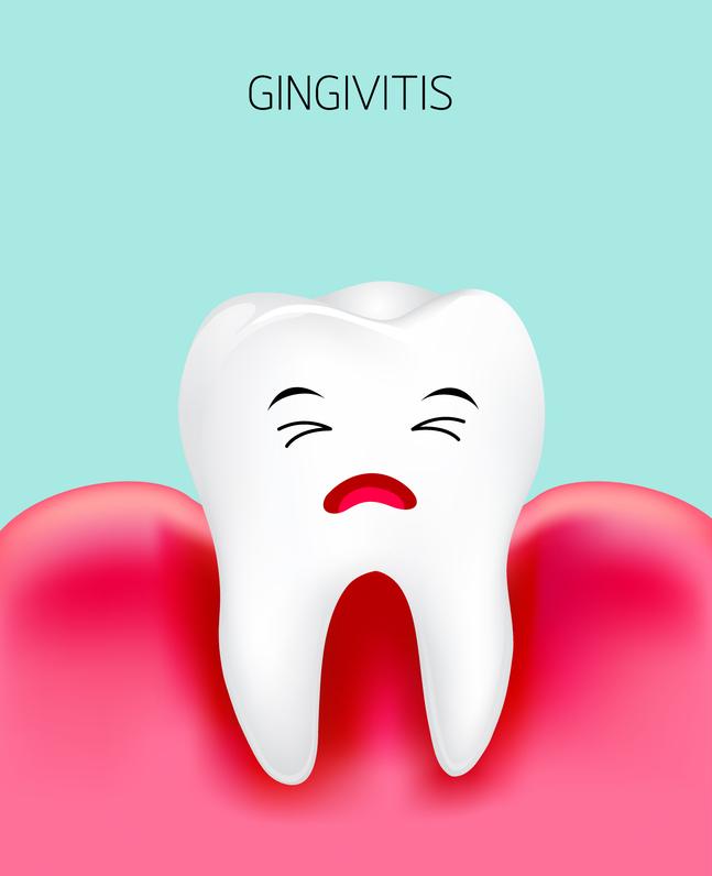 gingivitis ontstoken tandvlees